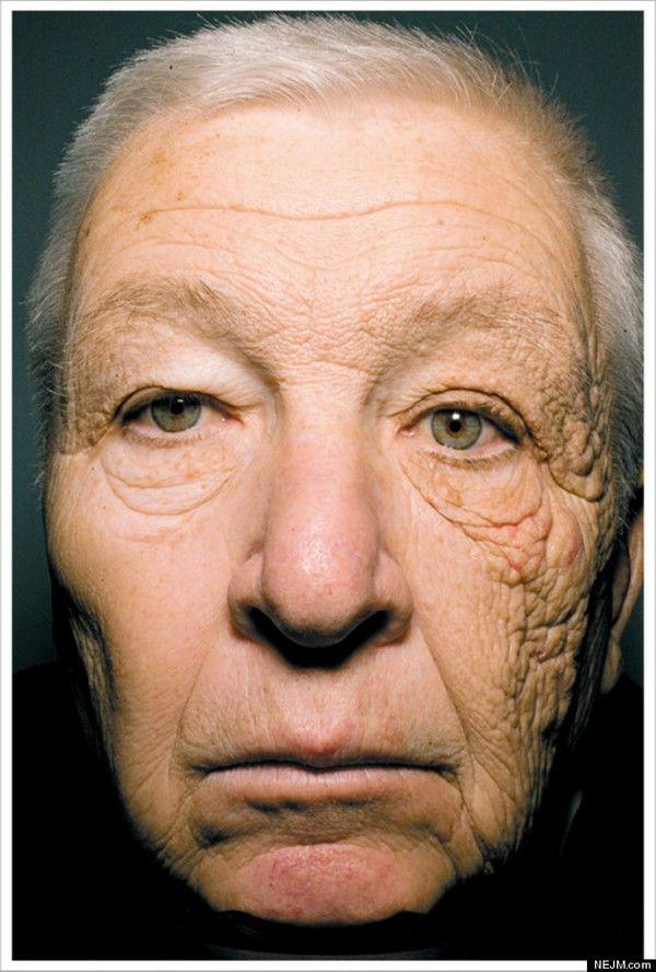 slabire imbatranire prematura pierdeți grăsimea de șold în 2 săptămâni
