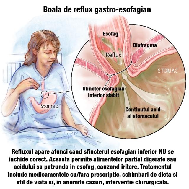 pierdere în greutate reflux