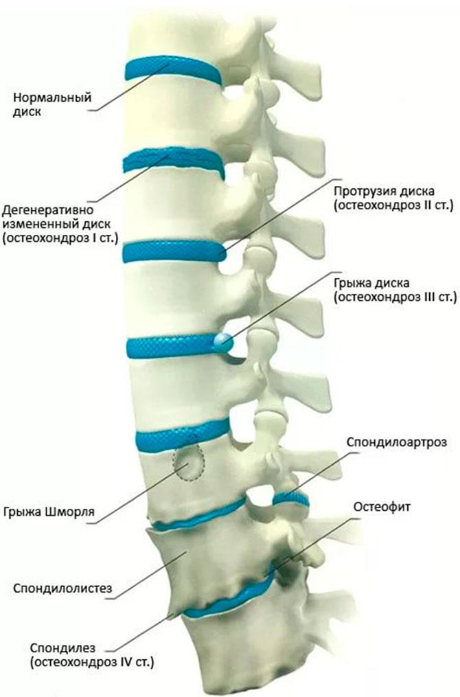 pierderea în greutate ajută stenoza spinării)