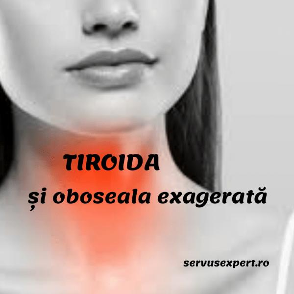 pierderea în greutate oboseală a glandelor umflate