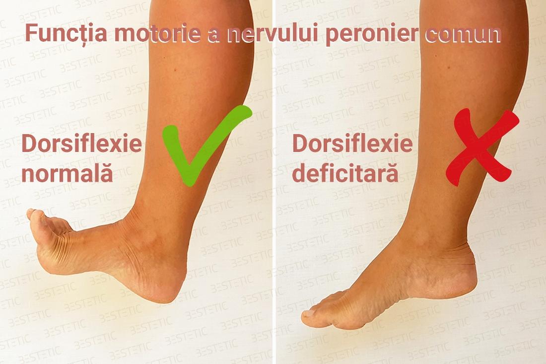 neuropatia peroneală și pierderea în greutate)