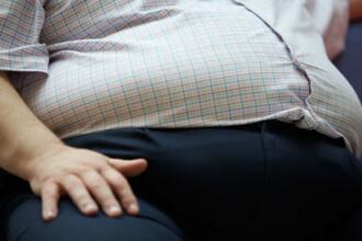 obezii trebuie să slăbească