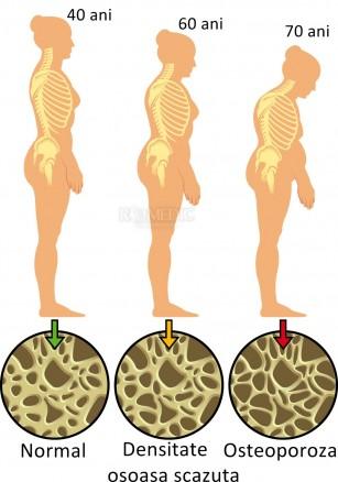 osteoporoza pierde în greutate