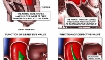 va scădea în greutate ajută stenoza aortică
