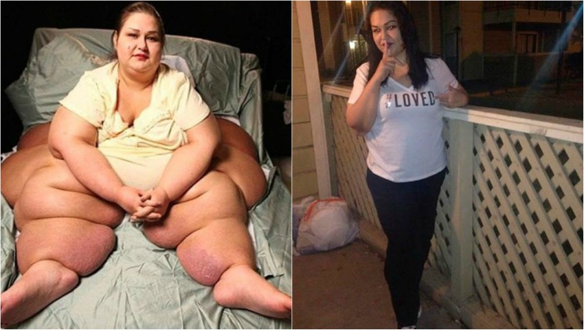 Dieta pentru femeile însărcinate supraponderale şi cele care suferă de obezitate