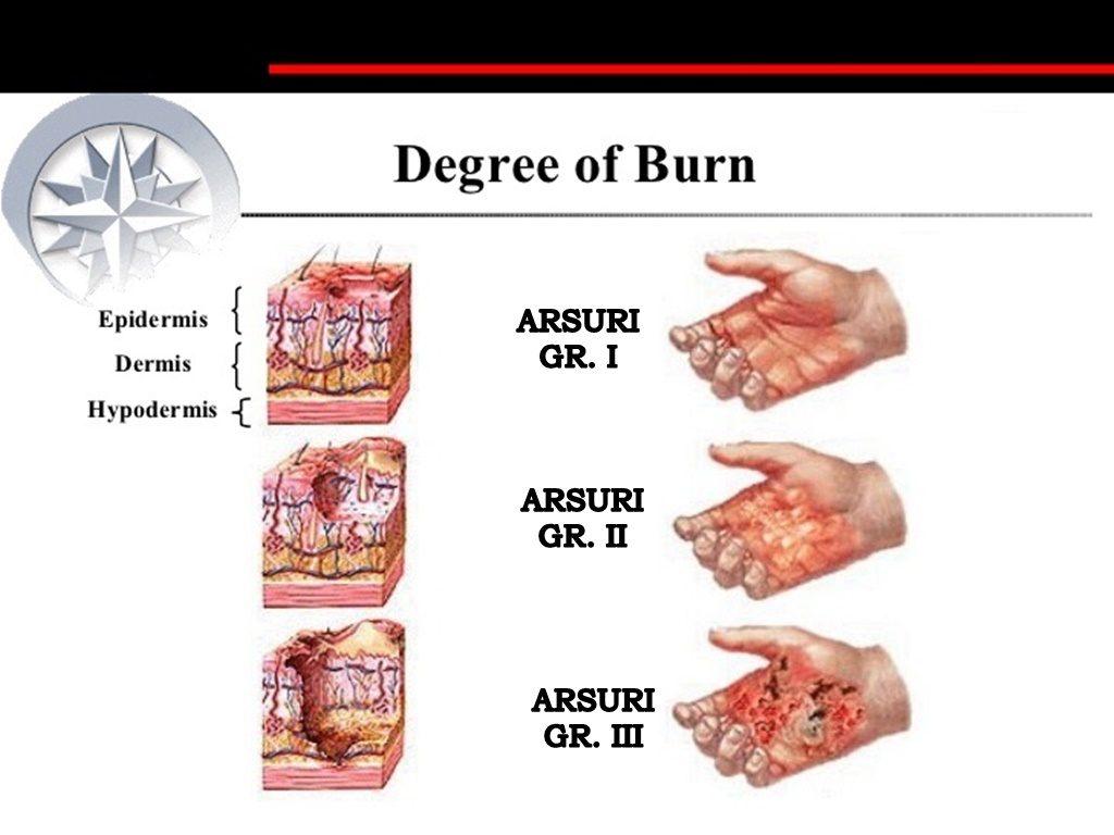 Instructiuni post injectare - Swiss EstetiX București, arsură de grăsime x reclamații
