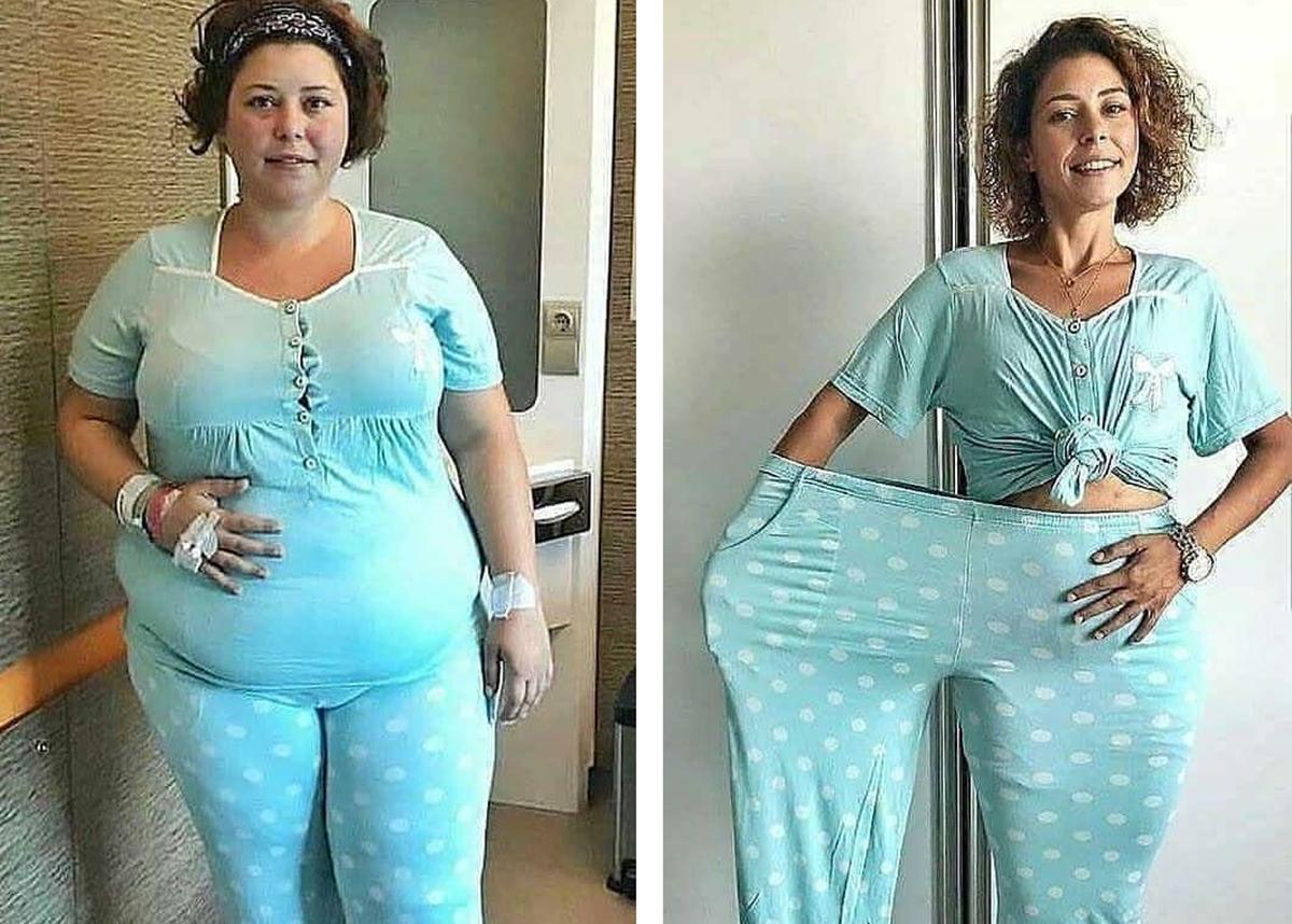 51 de lucruri pe care ar trebui să le știi despre o persoană grasă Doamna grasa pierde in greutate