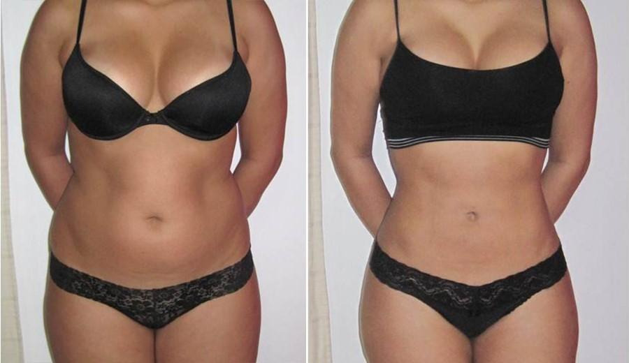 folosind extaz pentru pierderea în greutate slăbit de vită