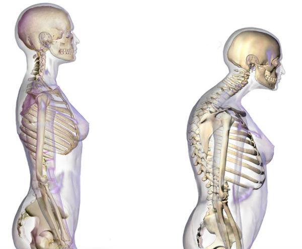 Pierderea în greutate a osteoporozei,
