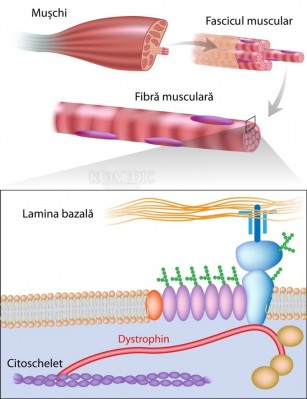Distrofia Musculara: Complicatii, diagnostic, tratament | Bioclinica