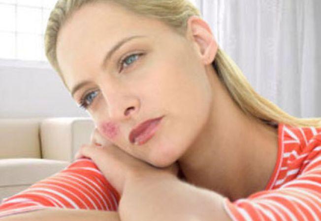 simptomele lupus își pierd greutatea