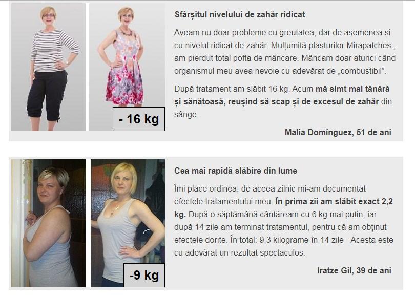 înainte și după pierderea în greutate hollywood fl