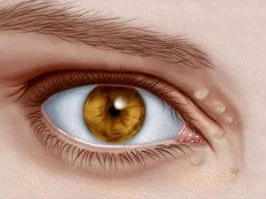 cum să pierzi grăsimea ochilor