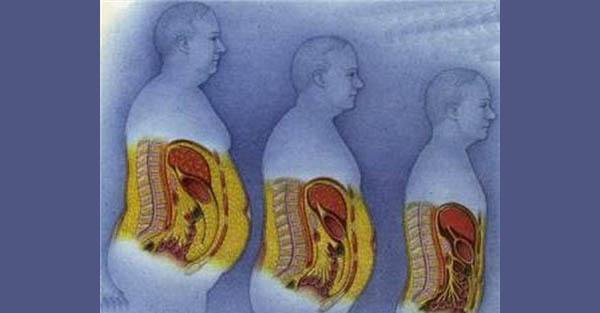 pierdere în greutate curcumin ncbi