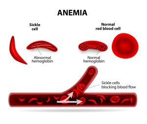 pierderea în greutate a anemiei pernicioase cum să slăbești peste 55 de ani