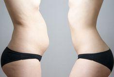 Pierdere de grăsime de 20 de kilograme pierdere în greutate h2t