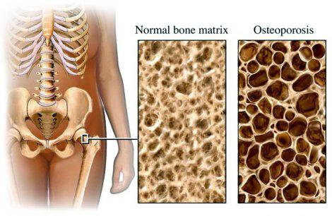 pierderea în greutate și densitatea mineralelor osoase Pierdere în greutate gharguti upay