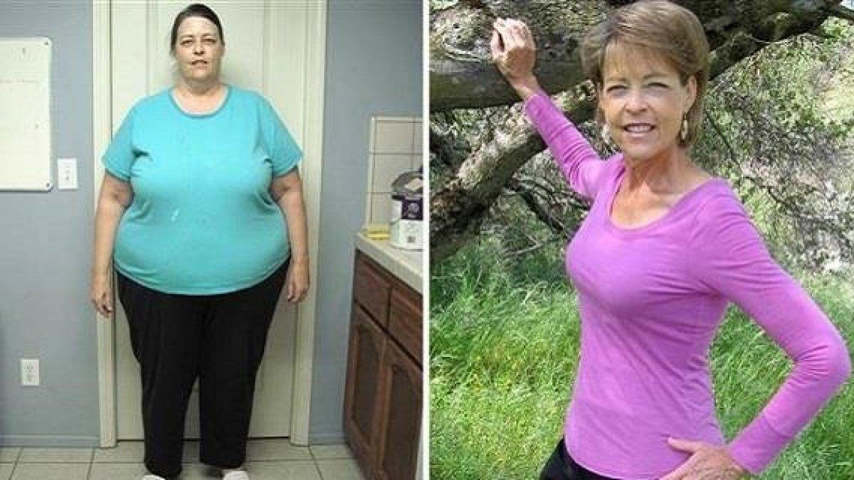 slabire usoara peste 50 de ani pierdere în greutate aubagio