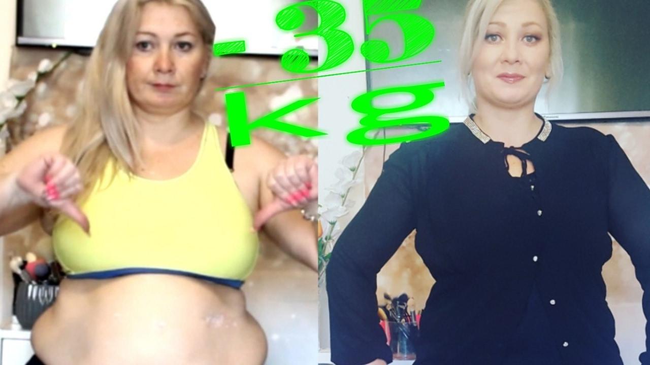 slăbește 20 kg 1 lună scăderea în greutate a sănătății molinei