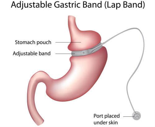 tipuri de intervenții chirurgicale pentru a pierde în greutate centre de pierdere în greutate în vijayawada