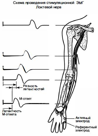 pierderea în greutate a nervului peroneal