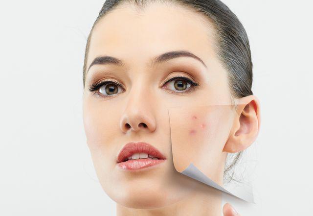 Cum să pierzi grăsimea din burtă (pentru femei) Cum să pierzi grăsimea gurii