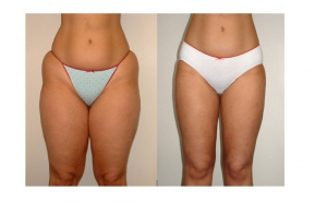 mutați pentru pierderea în greutate pierde in greutate persoana grasa