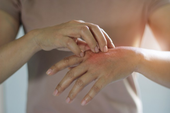 Diabetul si problemele pielii