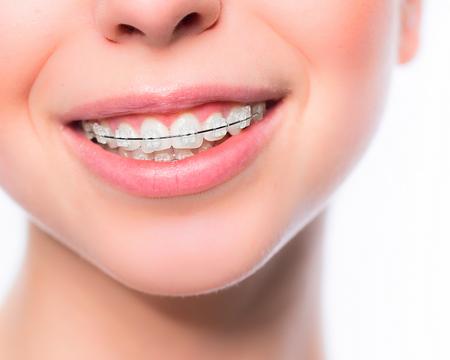 ortodontie de slabire nina hastie slabire